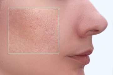 Face of a young woman with an accent on a skin enlarged pores and imperfections treatment, beauty treatment befire and after.