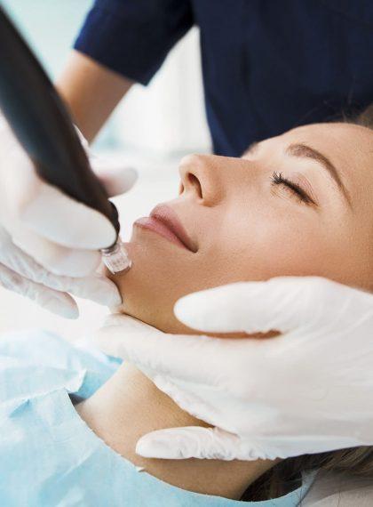 Dermapen skin needling